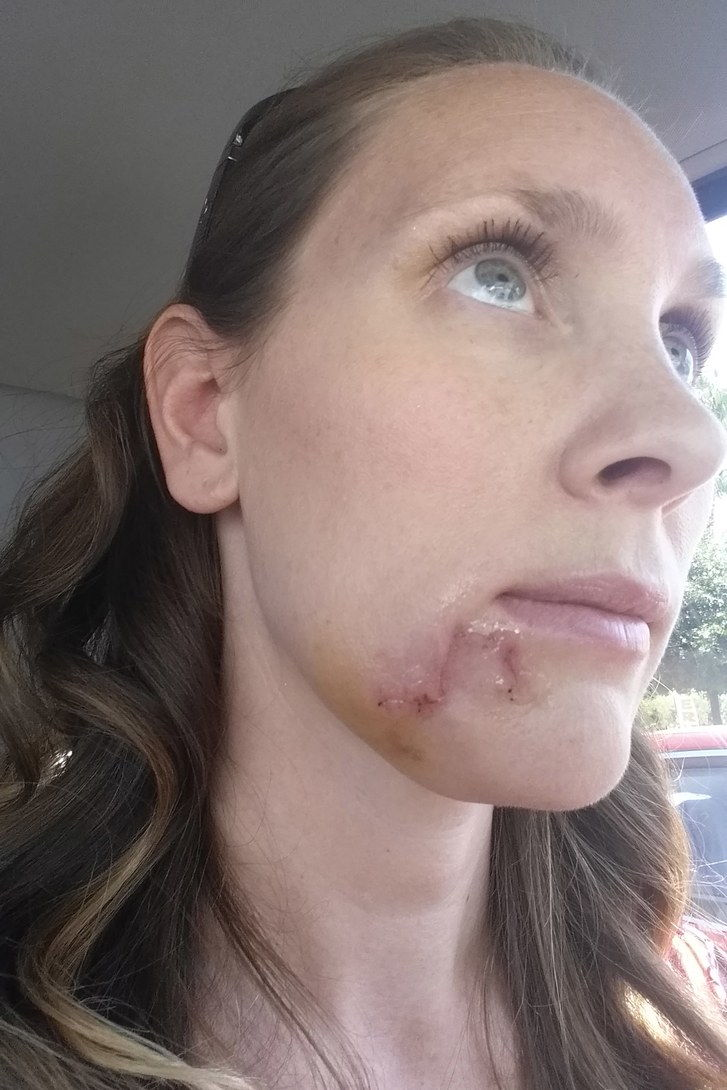 A mum of five was left with a gaping hole on her chin after dismissing her deadly skin cancer as a blackhead. Kari Cummins, 35, decided to see a dermatologist after years of over exposing her skin to sunlight and tanning beds. Despite noticing a strange mark on her chin, Kari, from California, USA, assumed she had nothing to worry about and dismissed the growth as a spot.