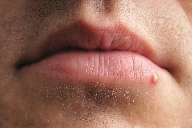 Pimple or zit on the lips on the lip area of a person.