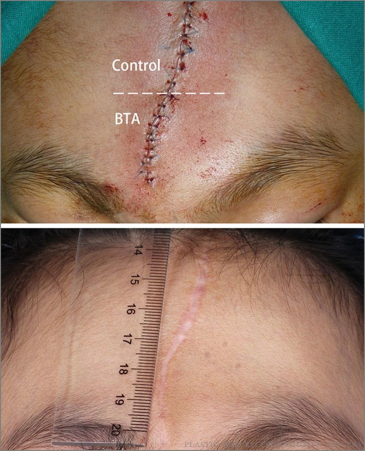 לפני and after image of patient with Botox injections in facial scar